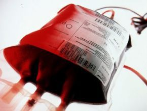 Yes, blood donations are paid in Cameroon