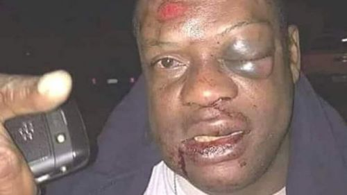 No, the man in this picture was not beaten by Paul Biya's personal guards