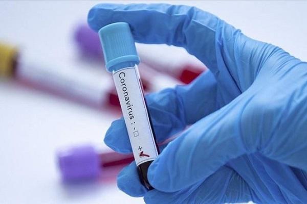 plus-de-2000-cas-de-coronavirus-enregistres-en-un-mois-au-cameroun